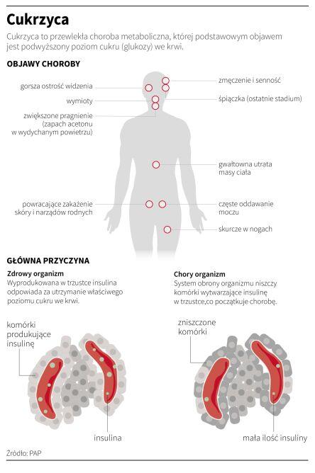 Objawy cukrzycy (PAP/Maria Samczuk, Adam Ziemienowicz)